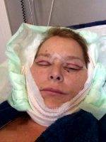 Recovery After The SMASectomy Facelift