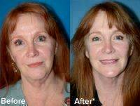 Removing Excess Fat, Tightening Underlying Muscles, And Redraping The Skin Of Your Face And Neck