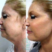 Restore A Youthful, Smooth Look To The Neck And Lower Third Of The Face