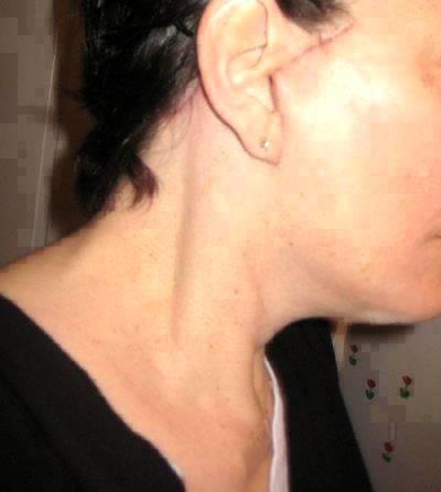 Short-scar SMAS Face Lift