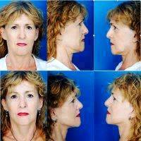The Deep Plane Facelift - A Surgical Procedure That Is Irreplaceable For Facial Rejuvenation