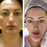 The SMAS Lift Affects The Superficial Top Layers Of Skin And The Deeper Tissues Of The Face And Neck