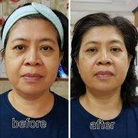 Thermage Treatment For Face & Neck, Body, Hands, Cellulite, Lips