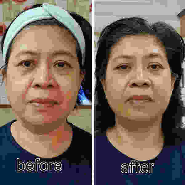 Thermage Face Before And After Photo » Facelift: Info