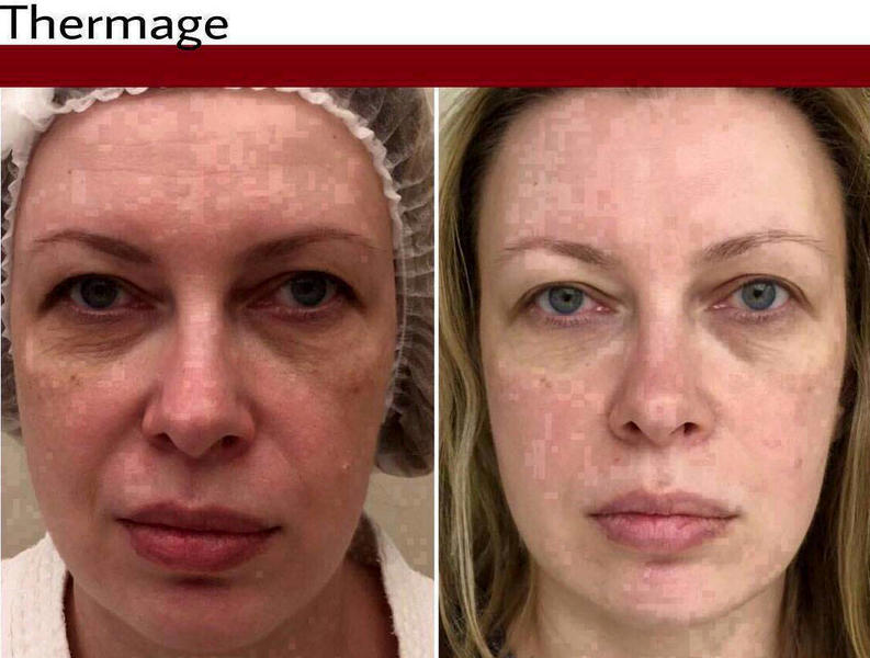 Thermage Facelift Before After