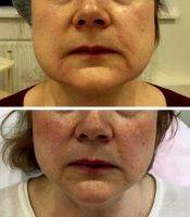 Thermage Before And After » Facelift: Info, Prices, Photos