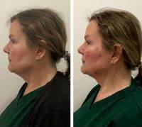 Thread Facelift Before And After Photo
