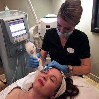 Laser Facelift Procedure