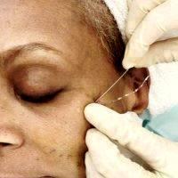 Thread Facelift Procedure In NYC