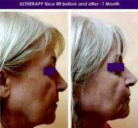 Ultherapy Facelift Before And After 1 Month