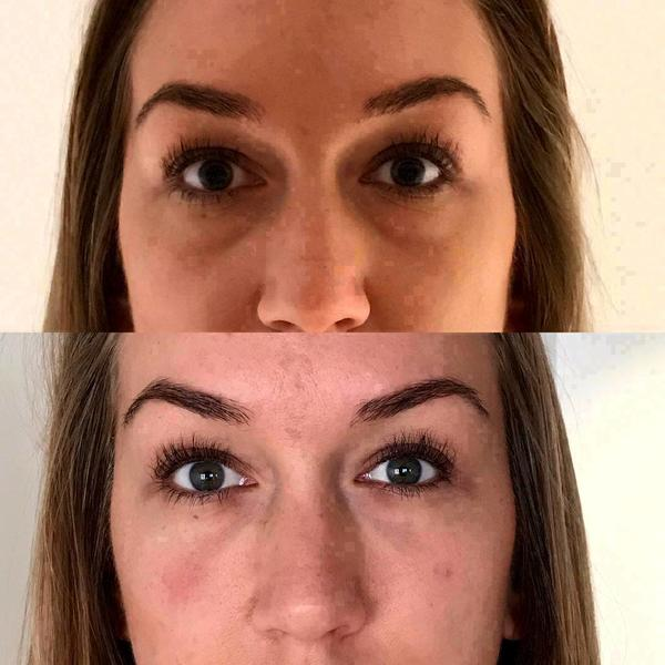 Ultherapy Facelift Without Surgery Photos