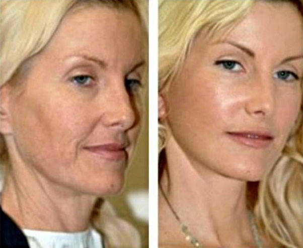 Image result for Vampire Facelift
