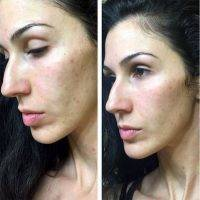 Vampire Facelift Before And After Pictures Facelift Info Prices Photos Reviews Q A