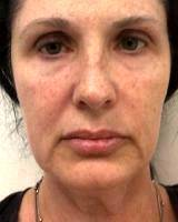 What's A Facelift By Dr Jacob D. Steiger