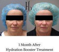 1 Month After Hydration Booster Treatment