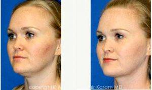 38 Year Old Woman Treated With Facelift Before & After By Dr Amir M. Karam, MD, San Diego Facial Plastic Surgeon