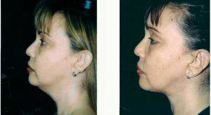 39 Year Old Woman Treated With Facelift Before & After By Dr Robert H. Hunsaker, MD, Miami Plastic Surgeon
