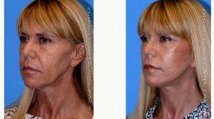 48 Year Old Woman Treated With Facelift Before & After By Doctor Onelio Garcia Jr, MD, FACS, Miami Plastic Surgeon