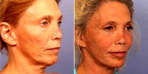 48 Year Old Woman Treated With Facelift Before & After By Dr Grant Stevens, MD, Los Angeles Plastic Surgeon