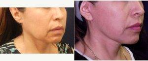 49 Year Old Woman Treated With Facelift Before & After By Dr Vaishali B. Doolabh, MD, FACS, Jacksonville Plastic Surgeon