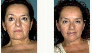 50 Year Old Woman Treated With Facelift Before & After By Dr. Burton M. Sundin, MD, Richmond Plastic Surgeon