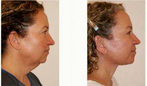 51 Year Old Woman Treated With Facelift Before & After By Dr. Dino R. Elyassnia, MD, San Francisco Plastic Surgeon