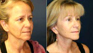 52 Year Old With Premature Aging Before & After By Doctor Steve Laverson, MD, San Diego Plastic Surgeon