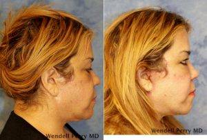 54 Year Old Woman Treated With Facelift Before & After With Dr. Wendell Perry, MD, Miami Plastic Surgeon