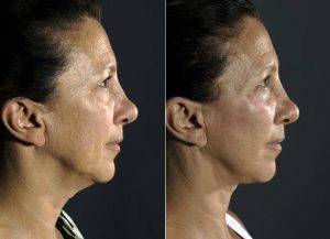 55 Year Old Woman Treated For Facial Aging Before & After By Dr. Marcelo Ghersi, MD, Miami Plastic Surgeon