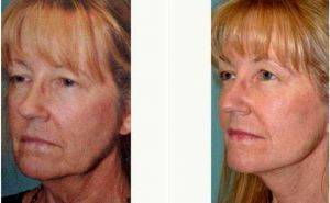 56 Year Old Woman - Facelift Before & After With Doctor David J. Kiener, MD, Sacramento Facial Plastic Surgeon