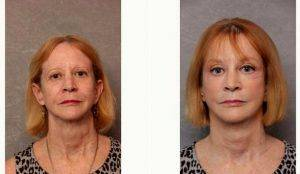 57 Year Old Woman Treated With Facelift Before & After By Doctor Christian G. Drehsen, MD, Tampa Plastic Surgeon