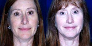 57 Year Old Woman Treated With Facelift Before & After With Doctor Stephen J. Ronan, MD, FACS, San Francisco Plastic Surgeon