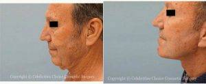 58 Year Old Man Treated With Facelift Before & After By Dr. Thomas Trevisani, Sr., MD, Orlando Plastic Surgeon