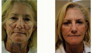 58 Year Old Woman Treated With Facelift Before & After By Dr. D. Scott Rotatori, MD, Orlando Plastic Surgeon