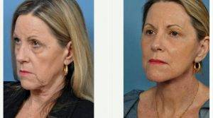 58 Year Old Woman Treated With Facelift Before & After By Dr. Roberto E. Garcia, MD, FACS, Jacksonville Facial Plastic Surgeon