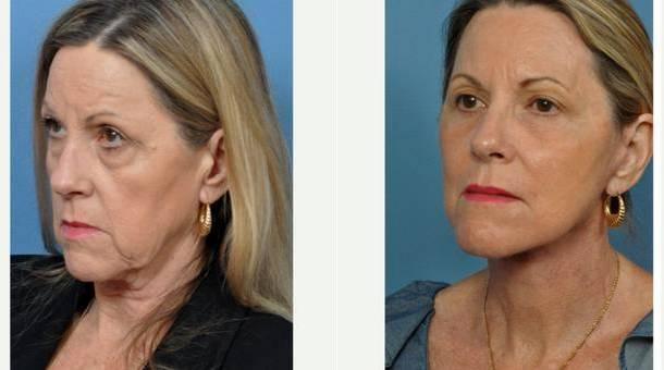 facial-plastic-surgeons-bonita-springs-fl-video-hot-blonde