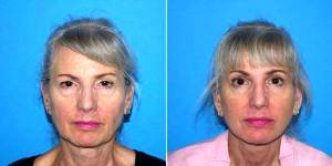 59 Year Old Woman Treated With Facelift Before & After By Dr Kyle S. Choe, MD, Virginia Beach Facial Plastic Surgeon