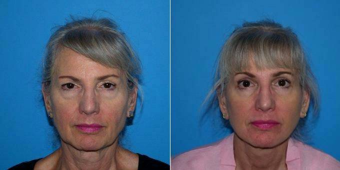 59 Year Old Woman Treated With Facelift Before After By Dr Kyle S Choe