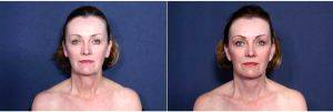 60 Year Old Woman Treated With Facelift Before & After By Doctor H. Michael Roark, MD, San Diego Plastic Surgeon