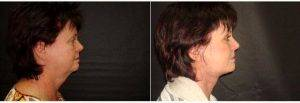60 Year Old Woman Treated With Facelift By Doctor Dominic Castellano, MD, Tampa Facial Plastic Surgeon