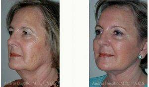 61 Year Old Woman Treated With Facelift Before & After With Doctor Andres Bustillo, MD, FACS, Miami Facial Plastic Surgeon