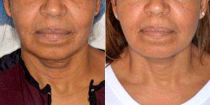 62 Year Old Woman Treated With Facelift Before & After By Dr. Anthony Bared, MD, FACS, Miami Facial Plastic Surgeon