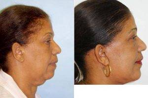 63 Year Old Woman Treated With Facelift Before & After With Dr. Sam Gershenbaum, DO, Miami Plastic Surgeon