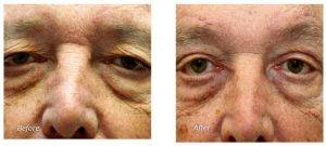 64 Year Old Man Treated With Browlift Before & After By Doctor Nadia P. Blanchet, MD, Richmond Plastic Surgeon