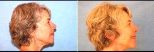 66 Year Old Woman Treated For Facelift Before & After With Dr. James C. Pietraszek, MD, San Diego Plastic Surgeon