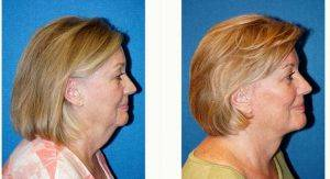 66 Year Old Woman Treated With Facelift Before & After By Doctor Joseph R. Coscia, MD, Sacramento Plastic Surgeon