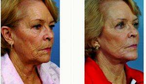 69 Year Old Woman Treated With Facelift Before & After By Dr J. Phillip Garcia, MD, FACS, Jacksonville Facial Plastic Surgeon