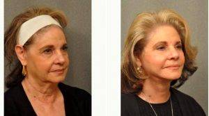 69 Year Old Woman Treated With Facelift Before & After With Dr Gilbert Lee, MD, San Diego Plastic Surgeon