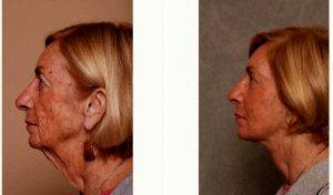 72 Year Old Woman Treated With A Refresher Lift By Dr Christian G. Drehsen, MD, Tampa Plastic Surgeon