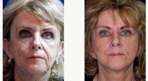 73 Year Old Woman Treated With Facelift By Doctor Anna Petropoulos, MD, FRCS, Boston Facial Plastic Surgeon